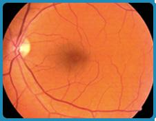 Examen de estructuras internas del ojo