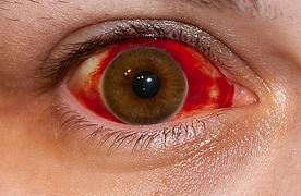 como curar en derrame en el ojo