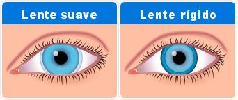 lentes de contacto rigidos - lentes suaves