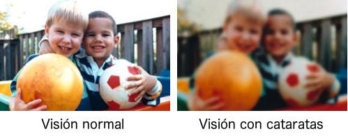 cataratas en los ojos - vision