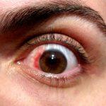 Operación de la vista