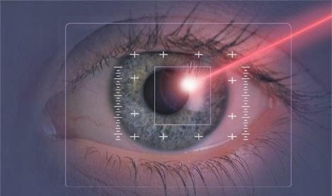 Operación de ojos: miopía y astigmatismo