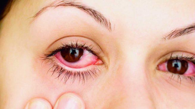 Cómo quitar los ojos rojos