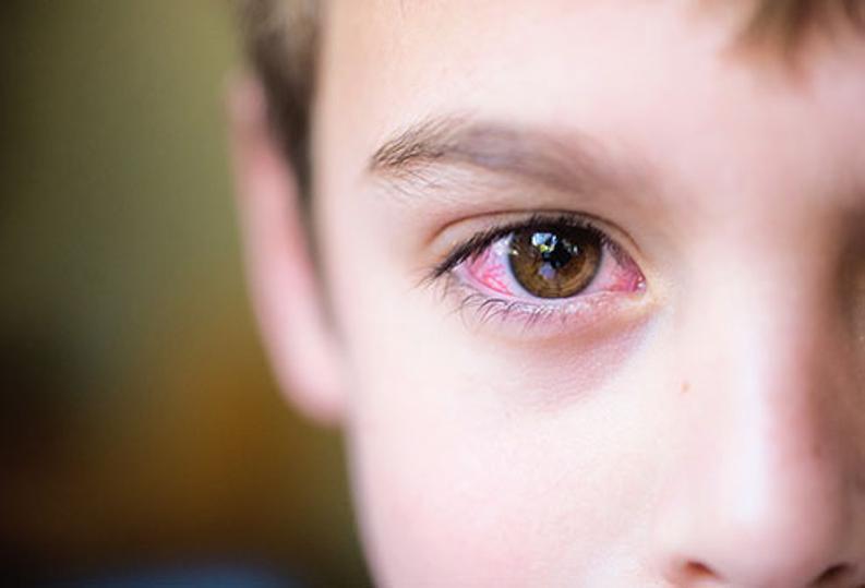 ojos rojos en niños