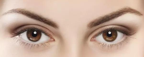 manchas en los ojos