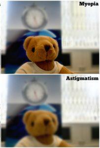 que es la miopia y astigmatismo