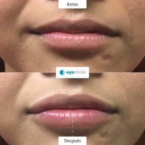Aumento de labios en monterrey